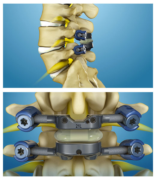Facet Joint Replacement