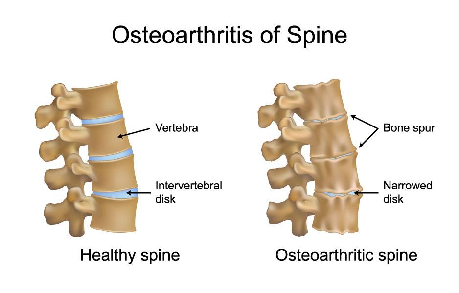 Osteophytes